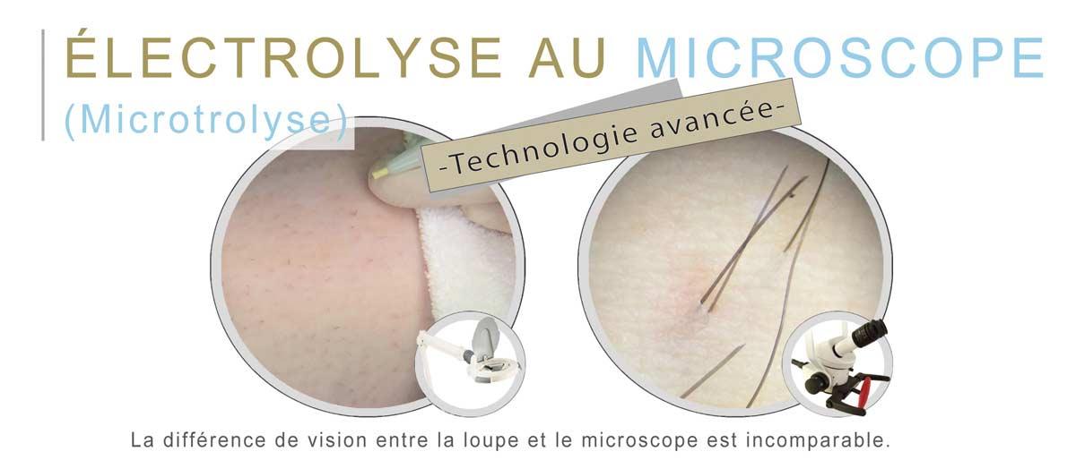 La différence de vision entre la loupe et le microscope est incomparable