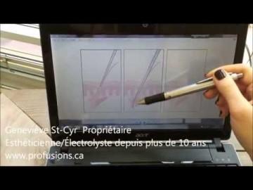 Geneviève St-Cyr vous parle d'électrolyse et de microtrolyse au microscope